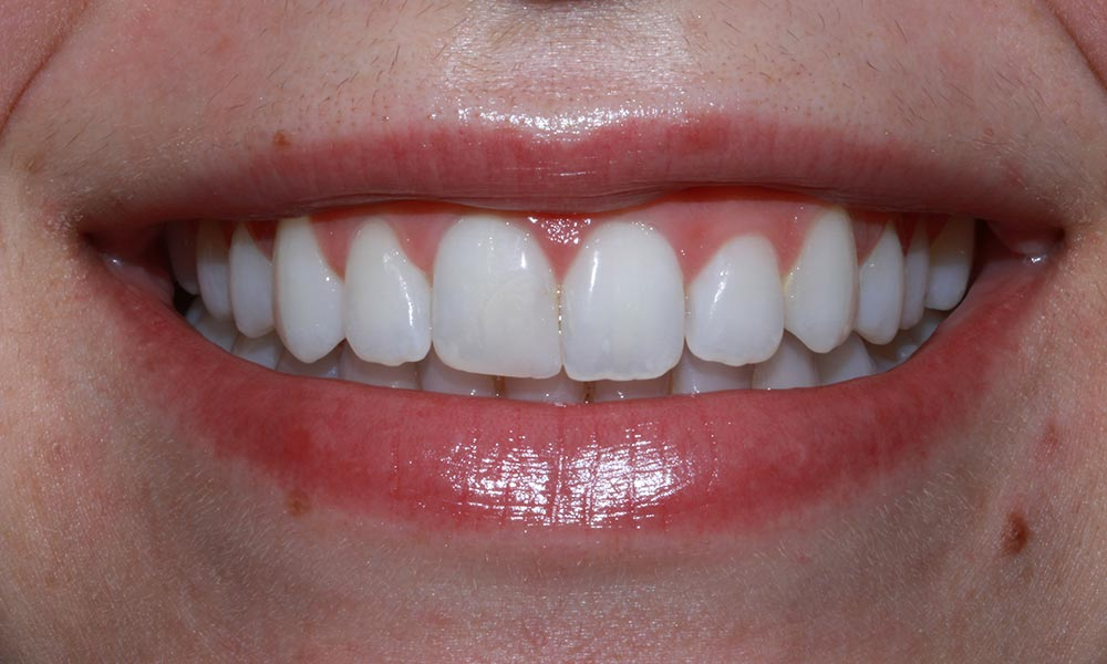 After smile makeover picture showing smiling mouth with bright, white teeth