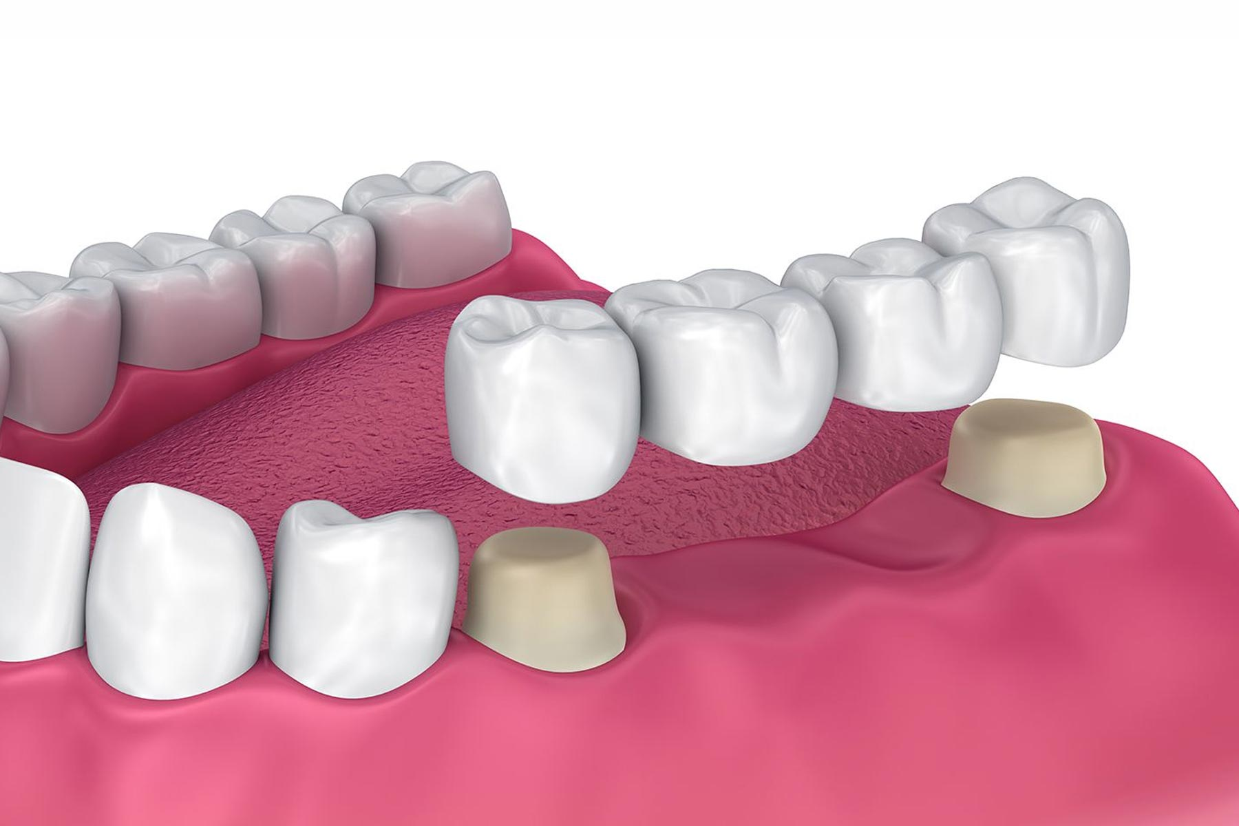Dental bridges graphic showing how the bridges are fitted