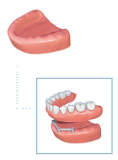 Implant-secured dentures graphic