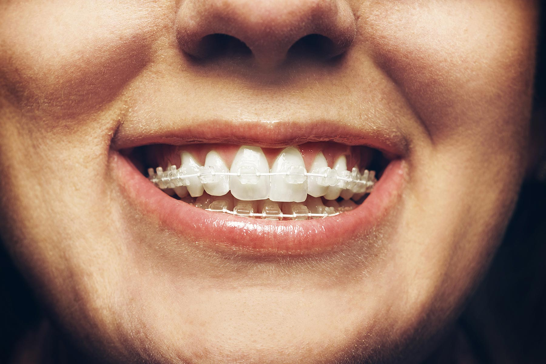Six Month Smiles braces fitted to smiling patient