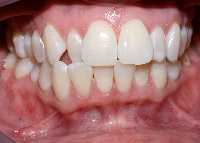 Before picture showing the crooked teeth of patients before orthodontic treatment