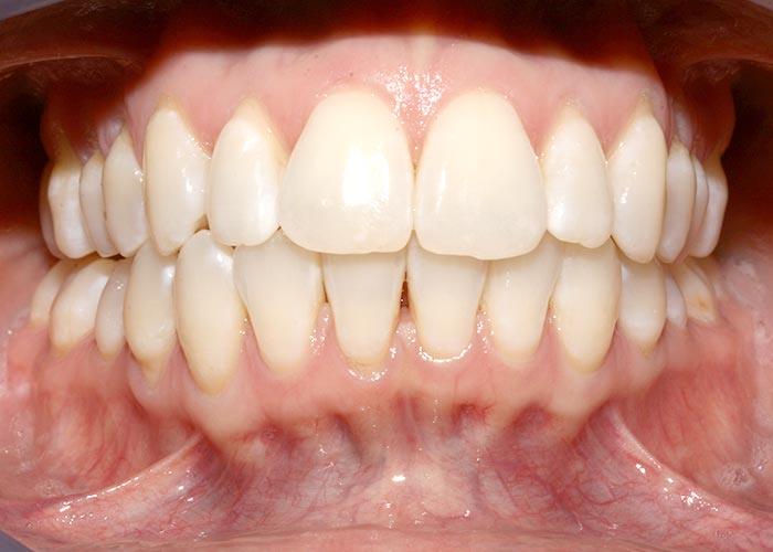 After orthodontics picture showing the straightened teeth of happy patient
