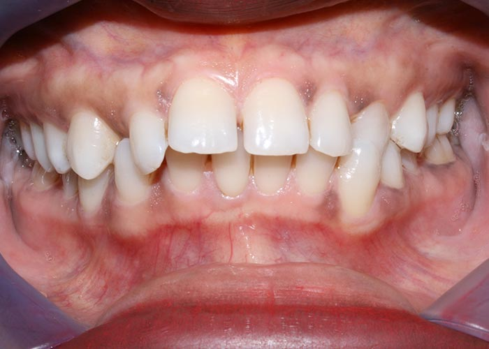 Before orthodontic treatment showing gappy and crooked teeth