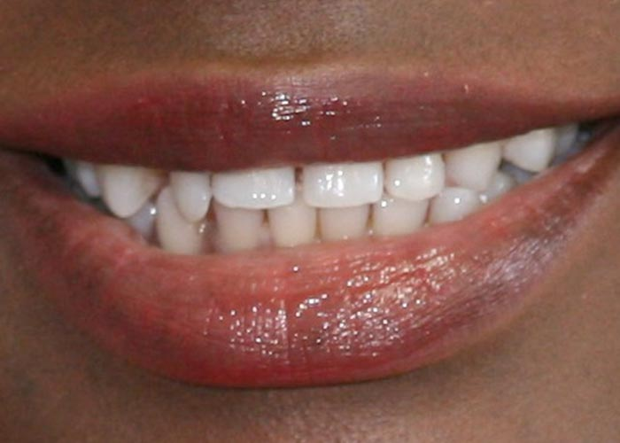 Before orthodontics treatment picture showing misaligned teeth