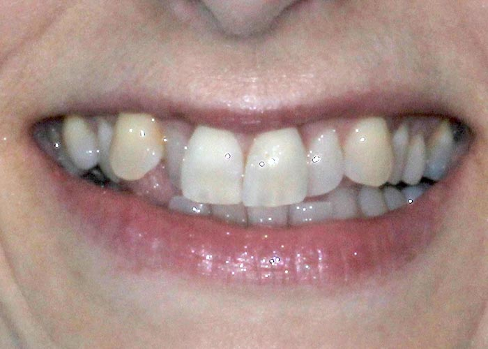 Before orthodontic treatment picture of patient with crooked and misaligned teeth