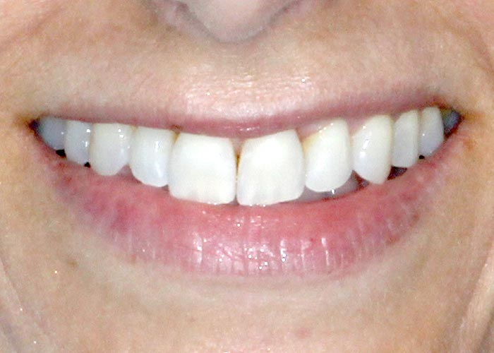 After orthodontic treatment of patient with dramatically straightened teeth
