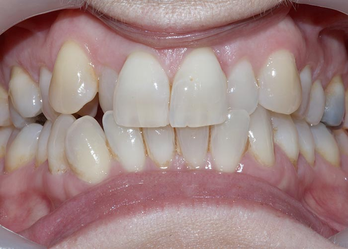 Before orthodontic treatment showing misaligned teeth of patient