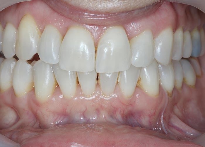 After orthodontic treatment showing straightened, clean teeth