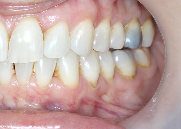 After orthodontic treatment picture showing straightened teeth