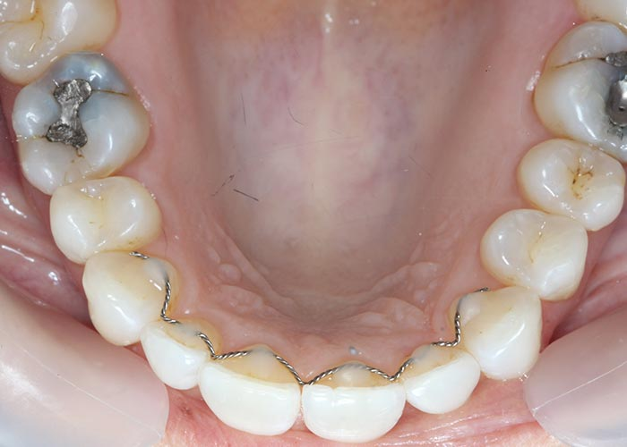 Patient's straightened bottom row of teeth after lingual orthodontic treatment
