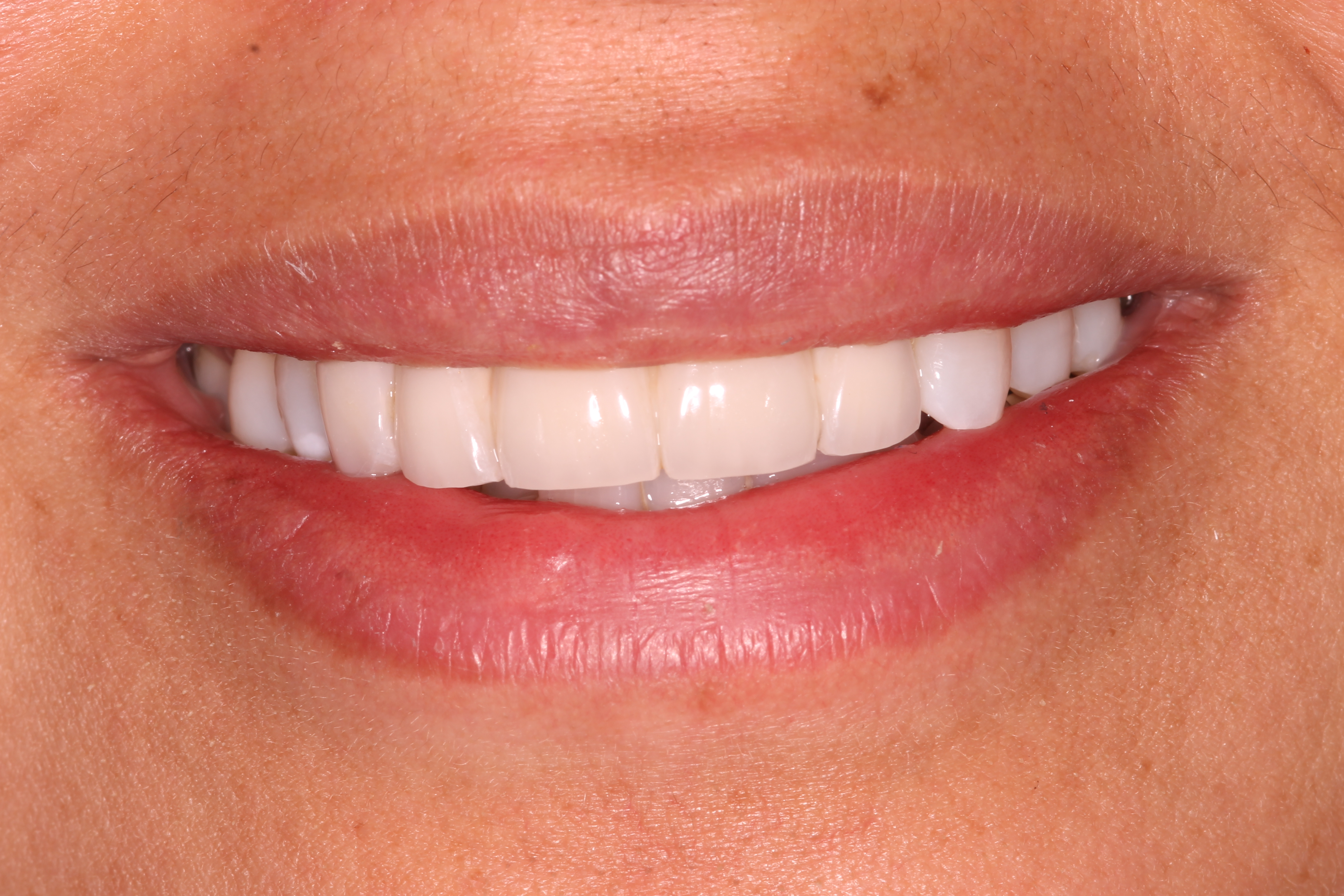Natural-looking dental implants