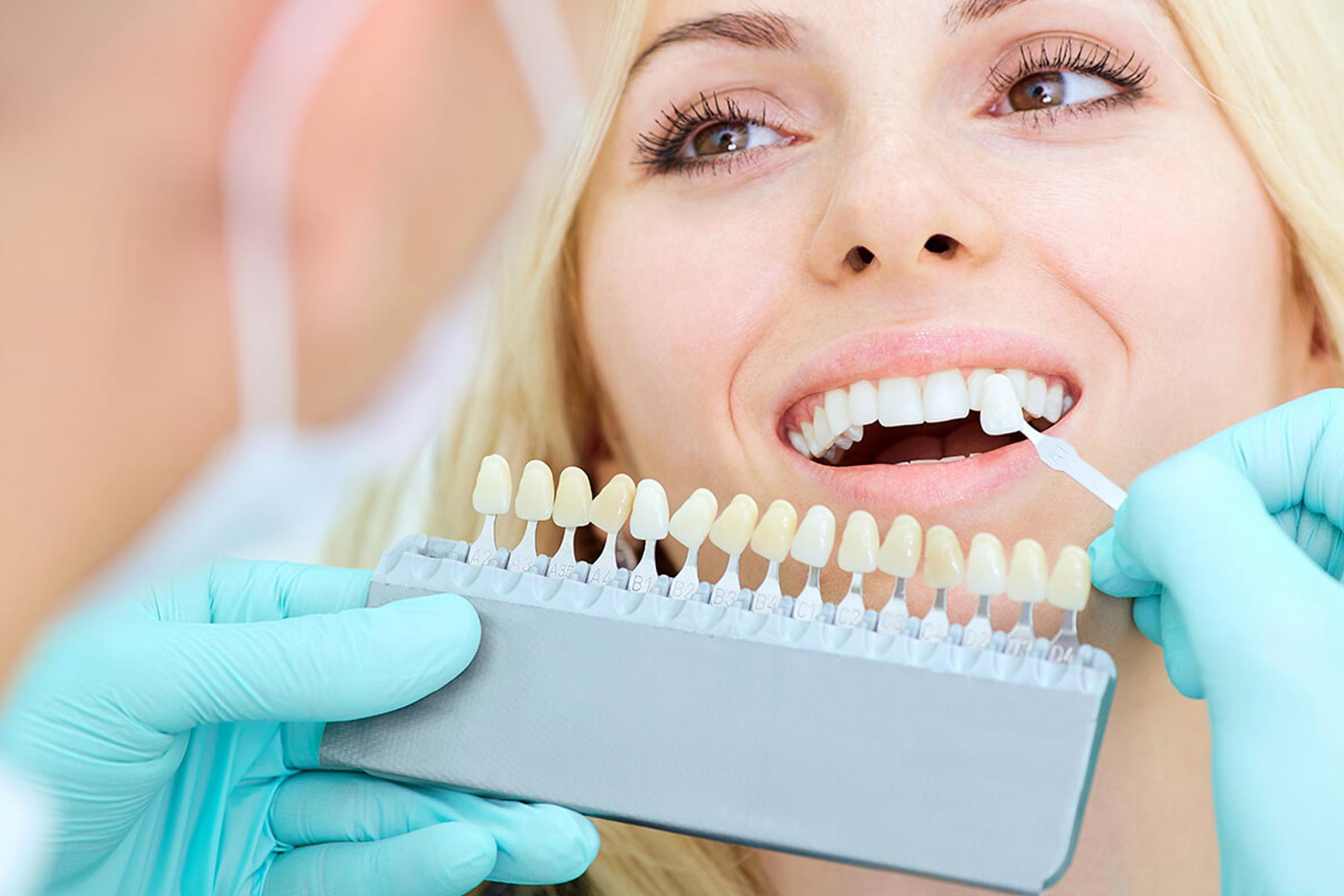Patient smiling and looking at dentist whilst they shade match their teeth for bespoke veneers