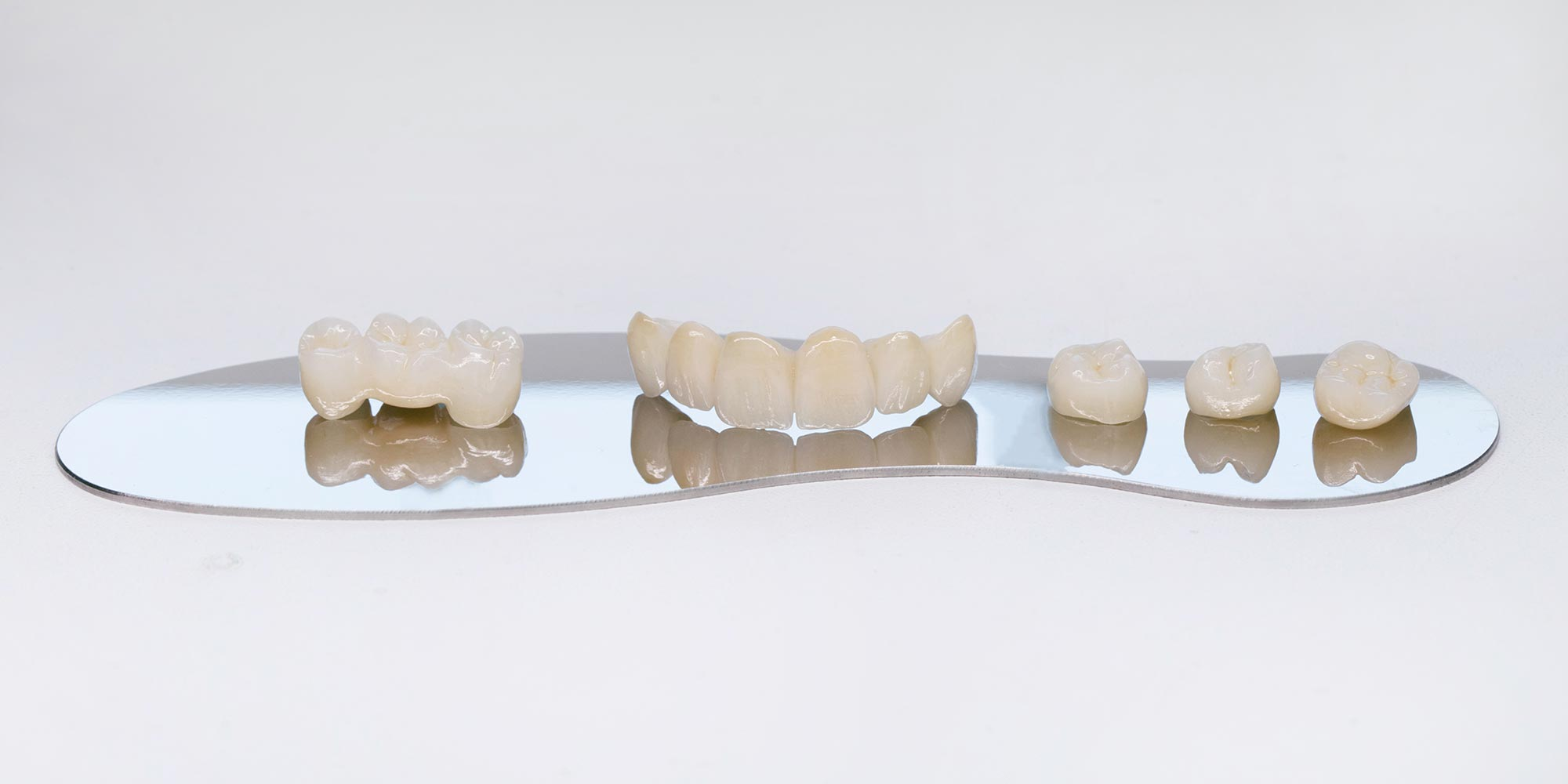 Restoring smiles in Salisbury – Crowns versus Bridges